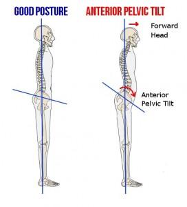 Anterior Pelvic Tilt 1