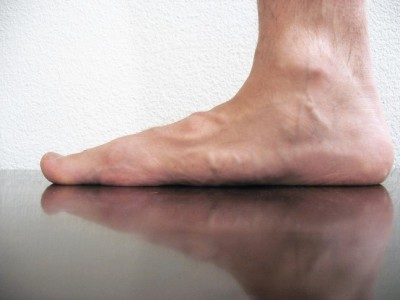 the difference between flat feet and overpronation fix flat feet
