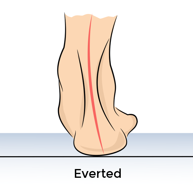 everted-heel-alignment