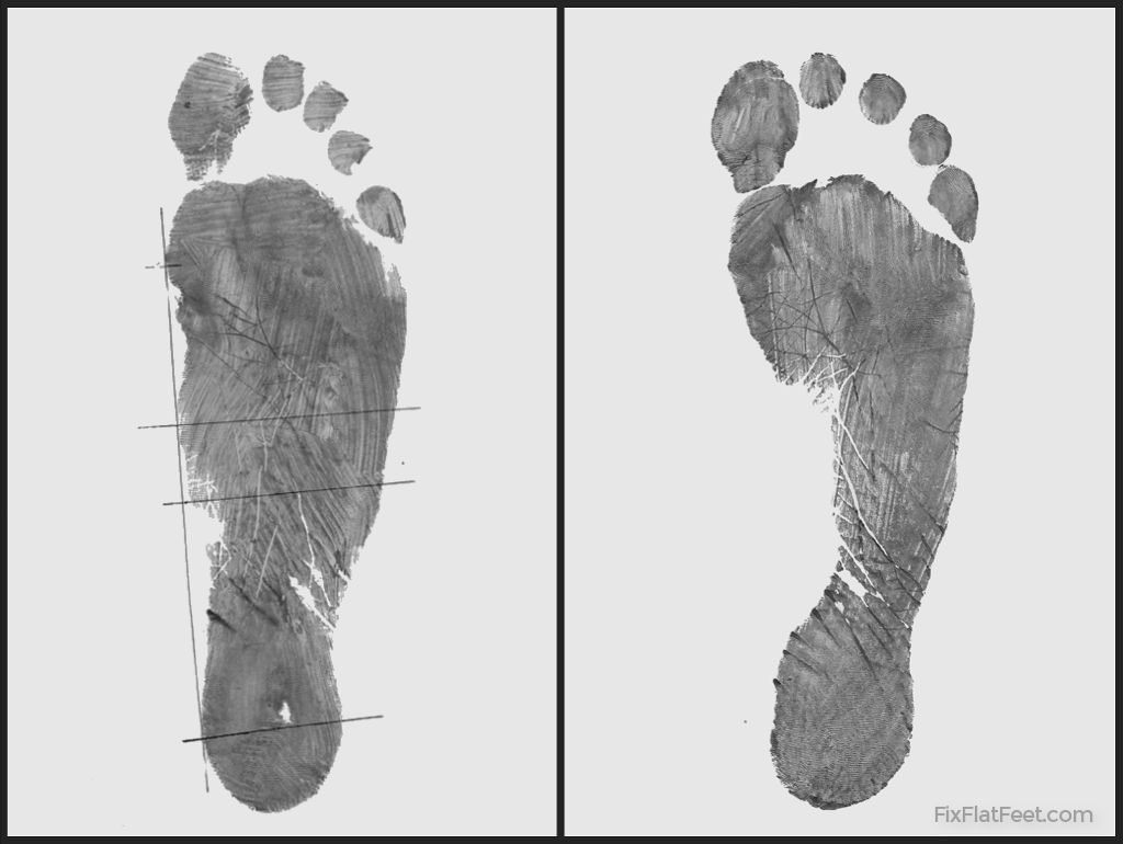 Flat foot footprint before and after