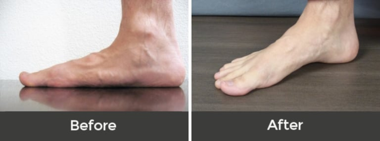 How can you fix flat feet